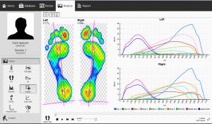 gait analysis scan image