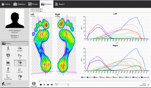 gait analysis scan image